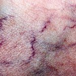 Escaping a Family History of Varicose Veins