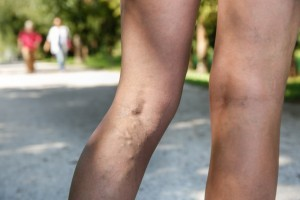 Varicose and spider veins on a woman's legs