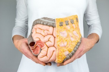 Are you at risk for colon cancer? Take the quiz