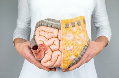 Woman holding model of human digestive system colon intestines to illustrate colon cancer risk