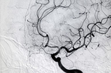 CT angiogram of heart and blood vessels arteries fight hardening with magneisum