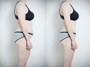 Side by side torso photos of a owoman who has lost weight