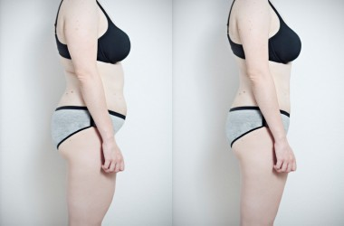 Side by side torso photos of a woman who has lost weight with a boost metabolism plan