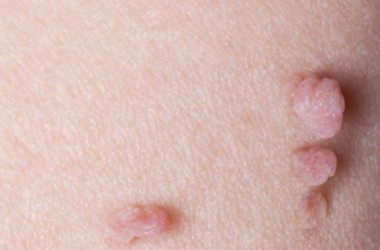 Close up photo of skin tags