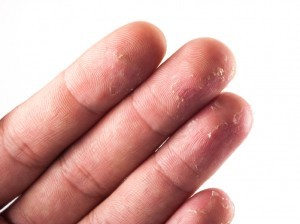 Closeup of dry winter skin flaking on back of a hand