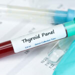 Why your thyroid test results are probably wrong