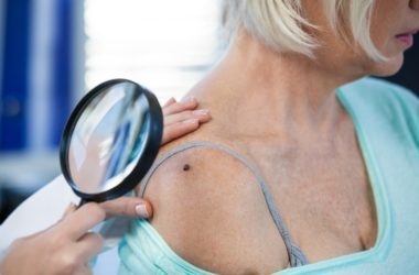 Doctor examines mole of female patient who may have skin cancer or precancerous mole