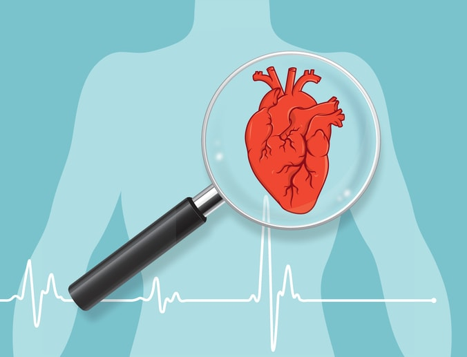Illustration of heart being examined for heart failure which supplements for heart failure may help