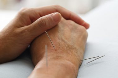 Acupuncture needles used to relieve pain an acupuncture benefit