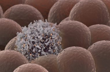 Cancer cell among healthy Cells to illustrate signs of breast cancer