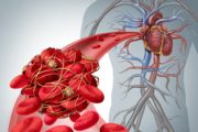 Illustration of blood clots which can cause stroke