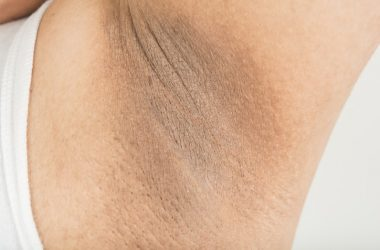 Dark armpit skin could be acanthosis nigricans a sign of silent diabetes