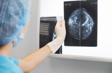 Doctor in scrubs holding a mammogram taken after tamoxifen therapy