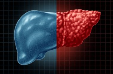 illustration of liver with fatty liver disease linked to fructose
