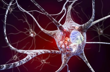 Illustration of a neuron with Parkinson's disease